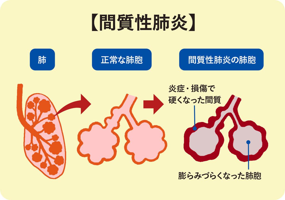 質 性 は と 間 肺炎
