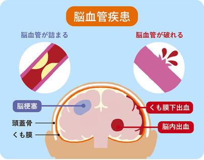 疾患 脳 血管