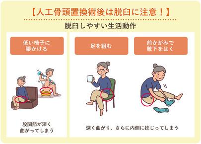 人工 骨頭 置換 術 脱臼 術後の脱臼予防 - 人工関節の広場|人工関節