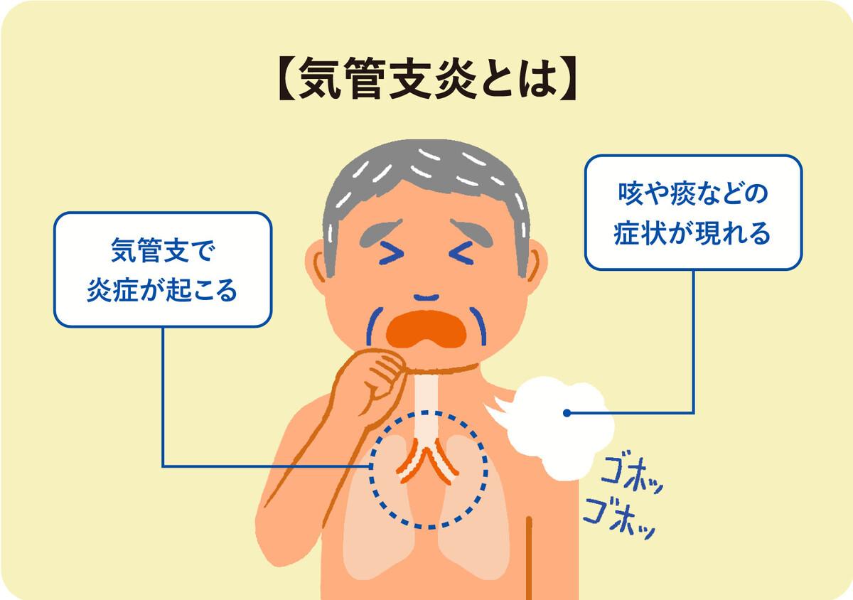 症状 気管支 炎