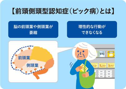 前頭 側 頭 型 認知 症 前頭側頭型認知症とは?症状や対処法・セルフチェック